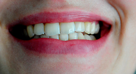 Mund mit Schiefstand Kiefer der eine Schräge lage zeigt